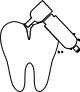 Root Canal Removal in Calgary On An Emergency Basis